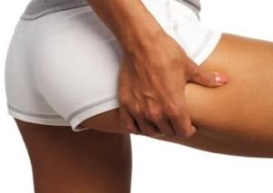 Cellulite e biofeedback